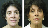 Liquid Facelift - fillers