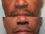 Nasal Labial Fold Correction with Silicone