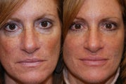 Liquid Face Lift, Non-Surgical Facial Rejuvenation