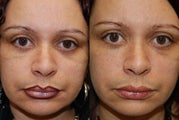 Silikon-1000, Permanent Injectable Filler for Lower Eyelid Bags