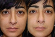 "Silikon-1000, Injectable Filler treatment for lower eyelid ""bags"" and naso-labial folds."