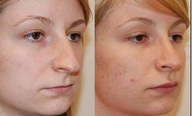 Rhinoplasty and Lip Augmentation with Silikon-1000
