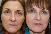 Non-Surgical Facial Rejuvenation with Silikon-1000 and Botox Cosmetic.