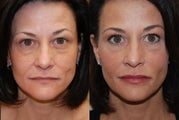 Non-Surgical Facial Rejuvenation with Silikon-1000. 2 treatments.