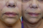 "Perioral Rejuvenation with Silikon-1000: Minimizing tha ""bar-code"""