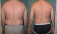 Smart Lipo of Male Abdomen/Flanks