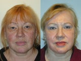 Trichloroacetic Acid Peel (TCA) and Upper Lid Blepharoplasty