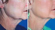 Titan Neck Treatment