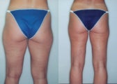 Liposuction (Thighs, Knees & Buttocks)