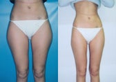 Liposuction of Posterolateral/Medial Thigh ('Saddlebags')