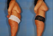 Tummy tuck, liposuction, and breast lift