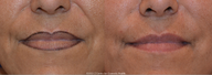 Juvederm Ultra XC for treatment of smile lines