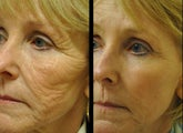 After one CO2 laser treatment on full face.