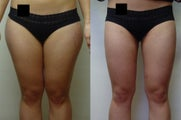 Liposuction Thighs (inner and outer)