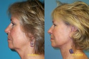 Neck lift with fat grafting around the mouth