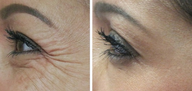 Botox for treatment of crows feet