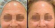 Endoscopic Brow Lift + Lower Blepharoplasty