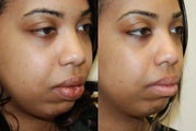 Lip Reduction Surgery.