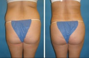Cleveland butt augmentation