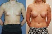 Breast Implants over muscle 375cc