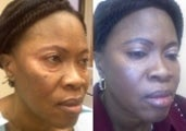 50 Year Old Lady Treated for Eyelid Bags