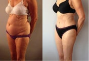 Abdominoplasty / Tummy Tuck Before & After