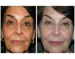 "No-downtime ""Liquid Lift"" for woman in her mid-60's"