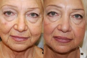 Silikon-1000 treatment to nasolabial folds, marionette wrinkles, and lips. Botox for frown lines.