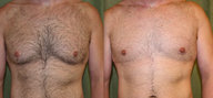 Gynecomastia surgery - male breast reduction