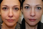 Silikon-1000 treatment for nasolabial folds