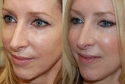 Silikon-1000 treatments to lower eyelid grooves and cheeks. Botox.