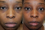 Lower eyelid rejuvenation with Silikon-1000. One treatment.