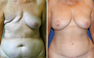 DIEP - Breast Reconstruction