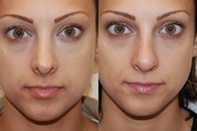 Non-Surgical Nose Job