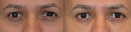 Treatment of Dark Circles Under the Eyes with Juvederm