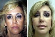 48 year old lady before and after cheek augmentation