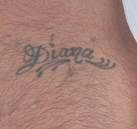 Los Angeles Tattoo Removal Before Laser Treatments