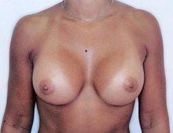 34c breast size. 34C bra size 325cc saline