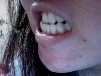 How To Fix An Underbite http://www.realself.com/question/fix-my-underbite-braces