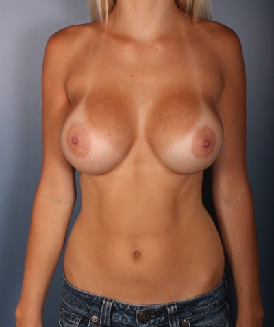475 cc silicone breast implants. 425 Cc Silicone Implants.