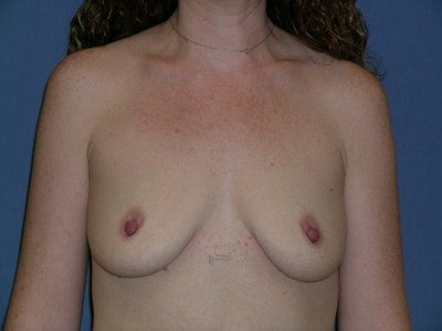 475 cc silicone breast implants. Breast Implants: Breast