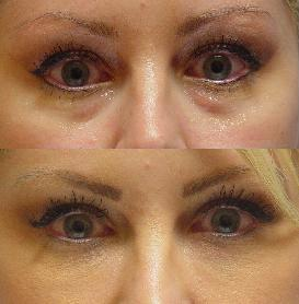 Juvederm to tear troughs