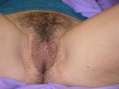 Hypertrophy Of Labia Minora. labia minora hypertrophy,