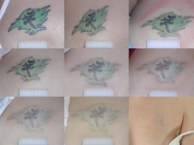 tattoo removal before and after. Tattoo Removal