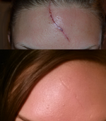 Forehead Scar - Best way to fix?