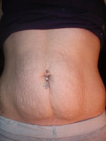 Does tummy tuck help remove stretch marks?