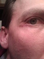 Eye irritation in outer corner/4 weeks post lower Bleph