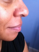 Need Doctor in Miami, Tampa or Orlando W/success & EXP Doing African American Rhinoplasty?