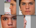 Septo/Rhinoplasty Swelling 7 months later