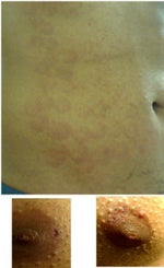 Laser Hair Removal Burn on Chest and Abdomen